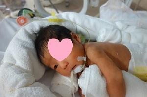出生後10日加工