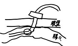 腸ろうイメージ