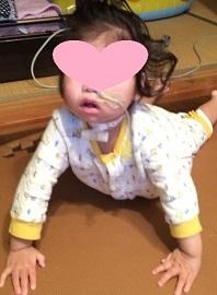 2歳7か月オペ後あおい - コピー