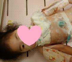 胃ろうオペ後のお風呂2歳7か月