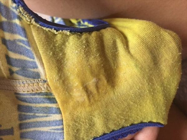 pants stain_image34