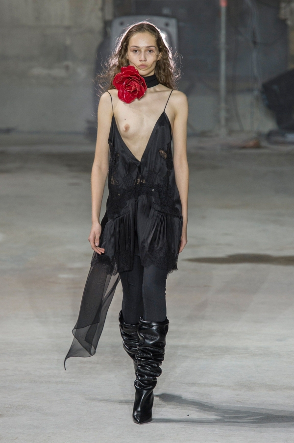 Michelle Gutknecht's Wardrobe Malfunction